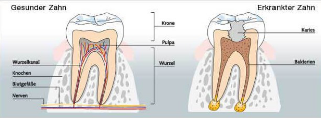 Zahnerhaltung durch Endodontie in Hamburg